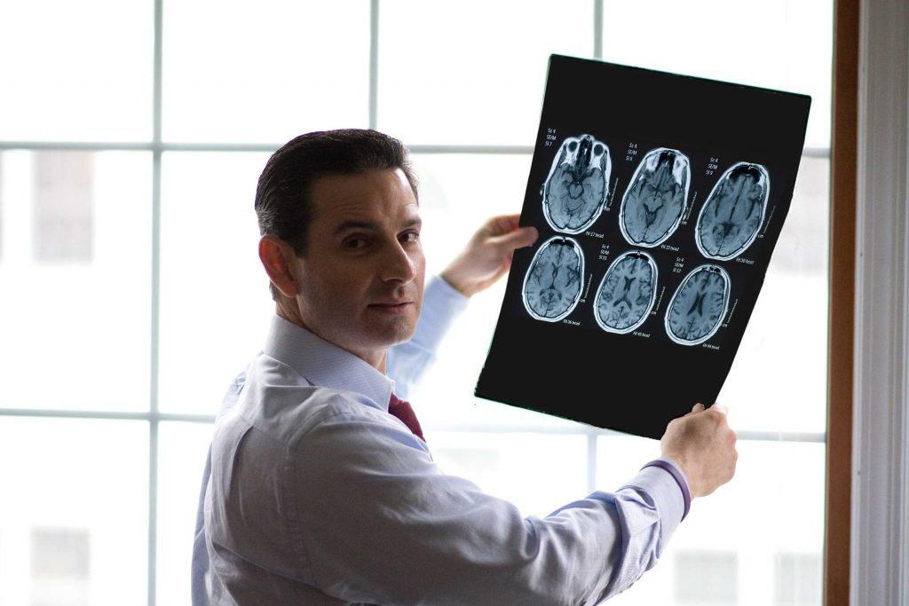 brain-injury-todd